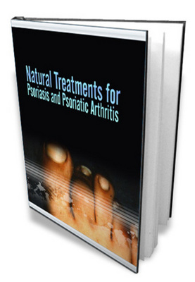 Product picture *NEW!* Natural Treatments for Psoriasis and Psoriatic Arthritis - with MRR!